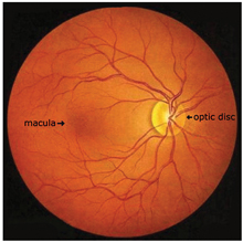 Macular Degeneration Treatment Macular Diseases Newsom Eye